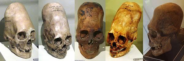 Karen Hudes et les crânes allongés